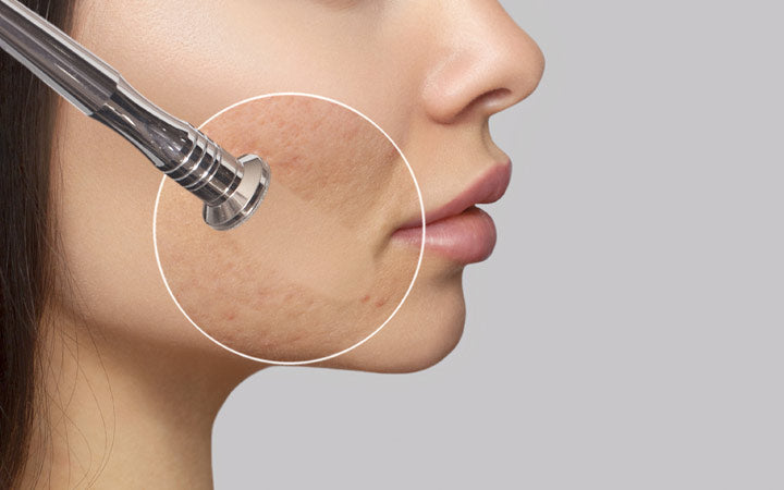 cosmetologist makes the procedure microdermabrasion for woman with problem skin