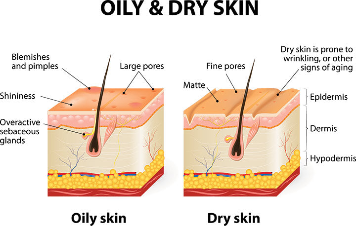 different human skin types oily and dry skin