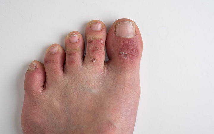 eczema causing rash dryness itchiness on feet of a old female