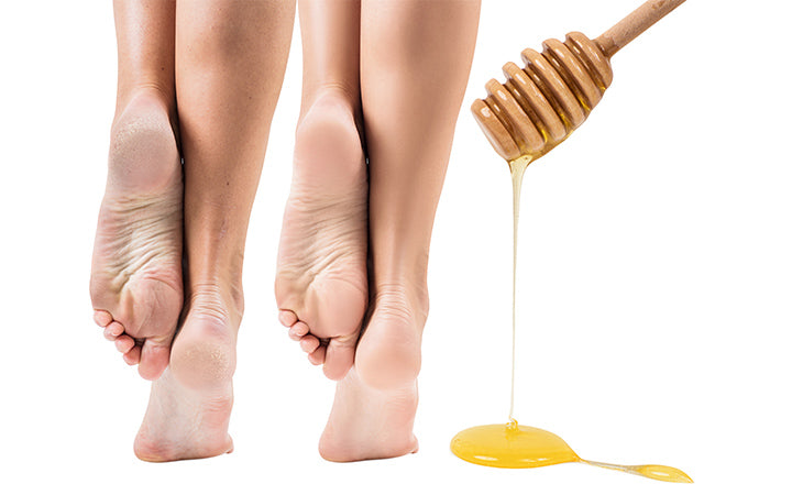feet with dry skin before and after honey treatment