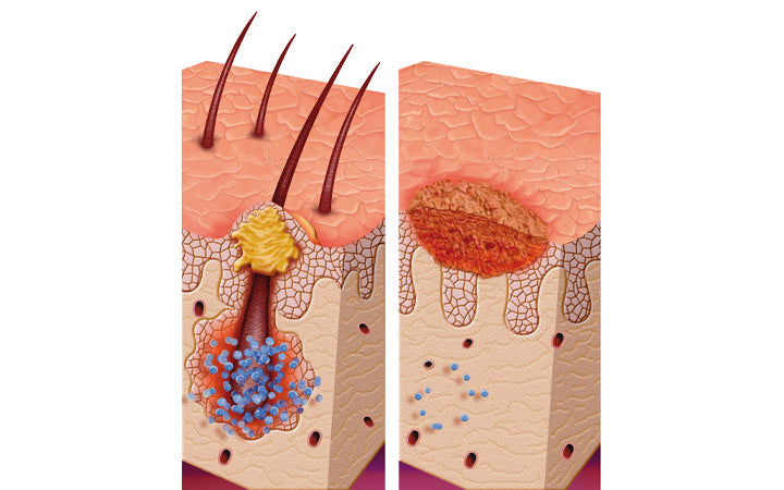 illustration about foliculis skin