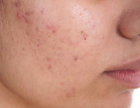 types-of-acne