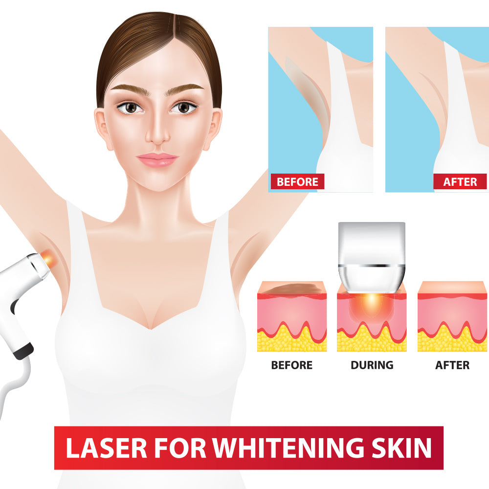 laser for whitening armpit before and after vector illustration