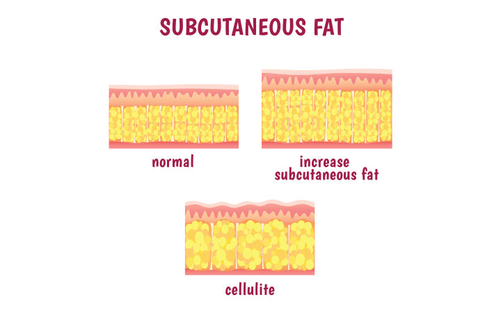 leather sectional layer subcutaneous fat cellulite