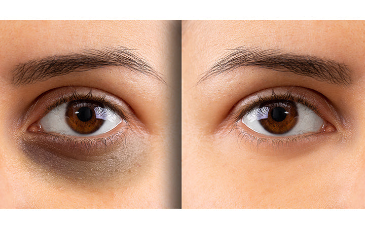 showing before and after suffering from dark circles beneath the eye