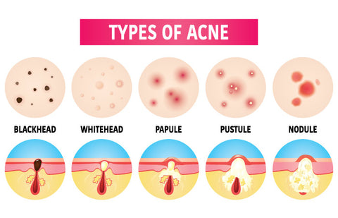 Acne can be inflammatory or non-inflammatory