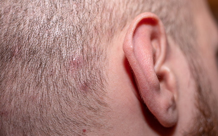 side view with ear in shot of a man with short hair suffering from scalp acne