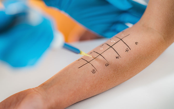 skin prick allergy testing for possible allergens