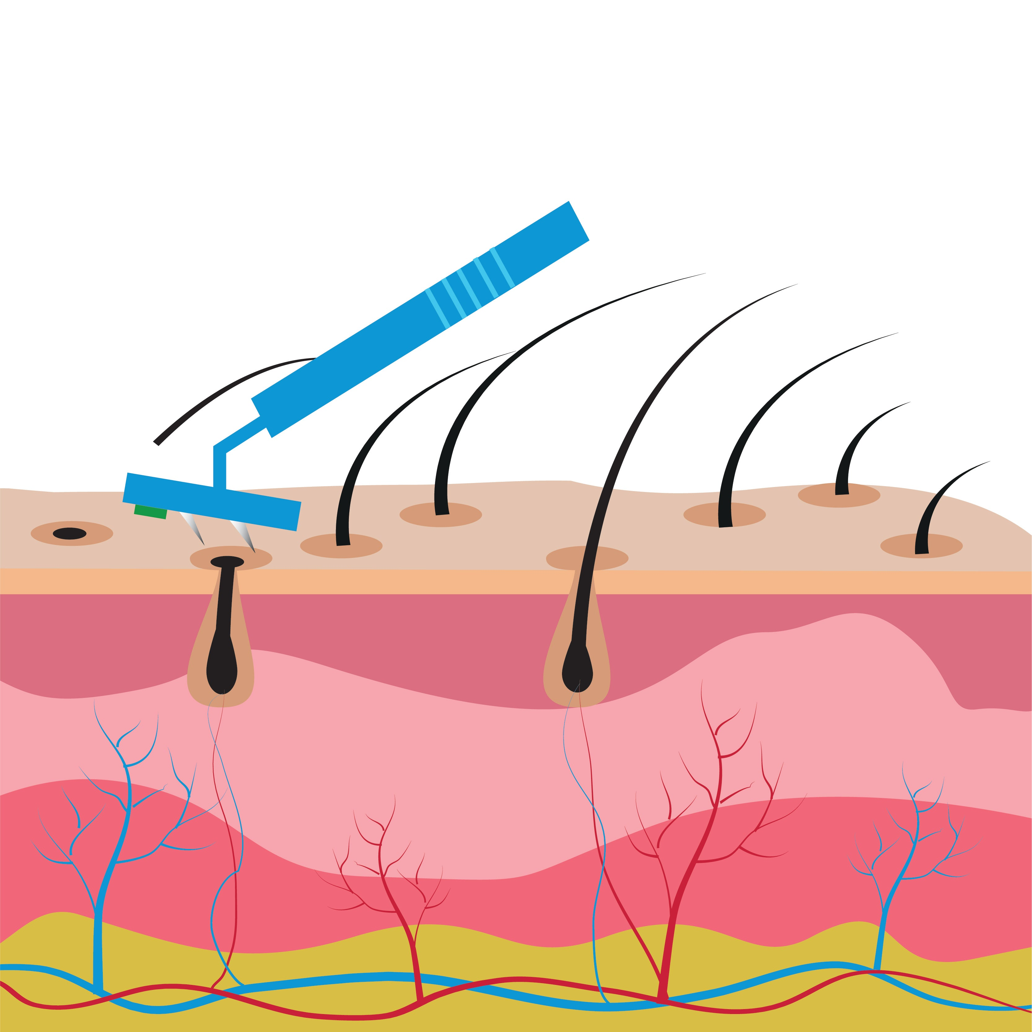 structure of the skin and hair removal by shaving
