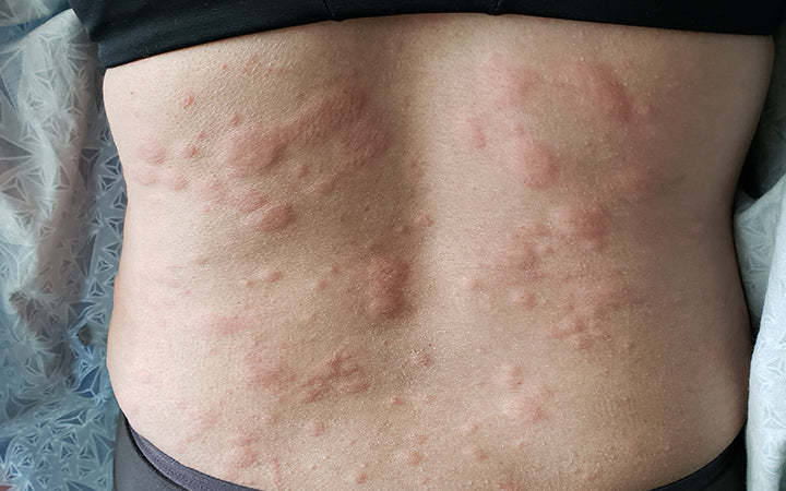 urticaria or hives on the human back
