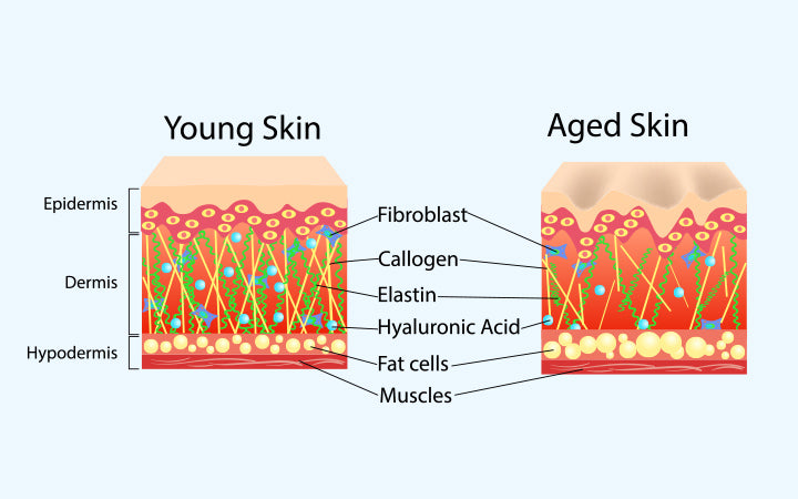vector diagram schemes two types skin