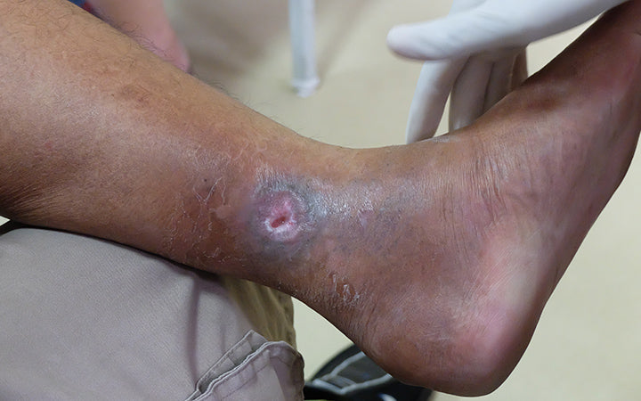 venous ulcer or varicose ulcer at the medial side of leg