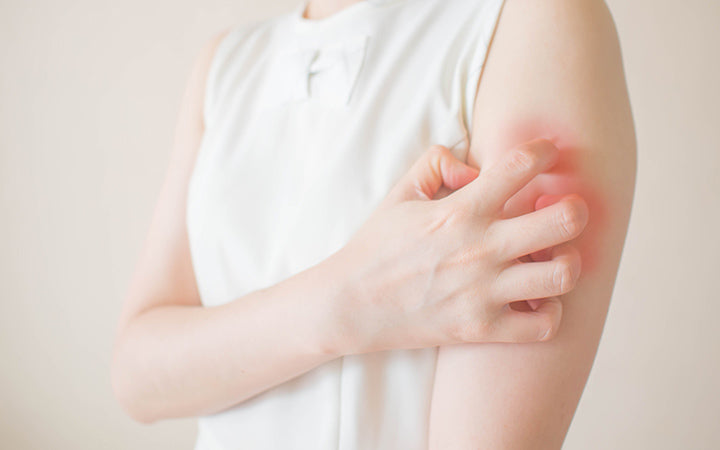 woman scratching arm from having itching