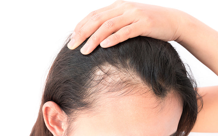 woman with serious hair loss problem