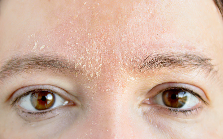 woman with symptom of atopic dermatitis on brows