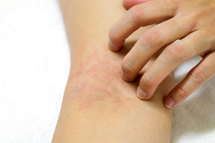 women's hands are scratching allergy to red rash
