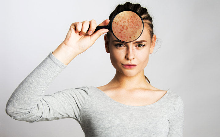 young girl having skin problems and holding magnifier face skin close up