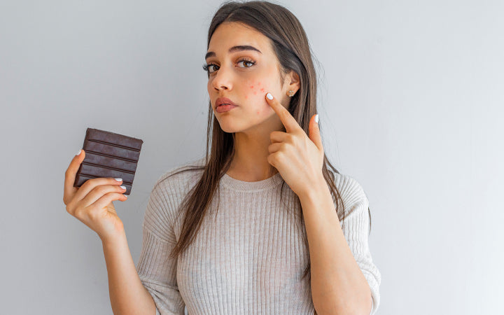 young woman with problem skin holding chocolate bar and looking at camera