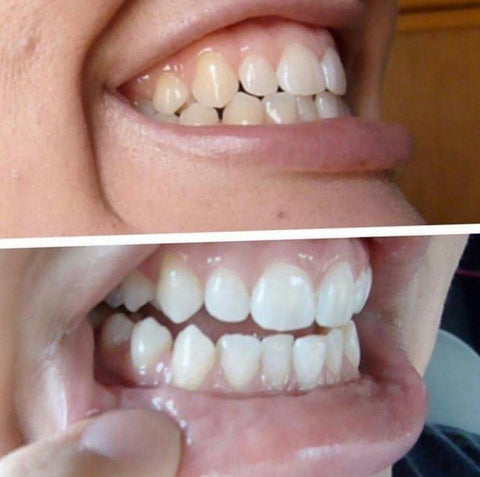 charcoal teeth whitener works best activated charcoal