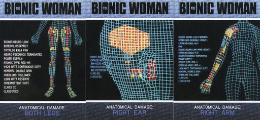 Bionic Collection The Bionic Woman Implant Case Topper Chase Card Set CT1-CT3   - TvMovieCards.com