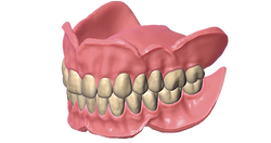 exocad Full Denture (Perpetual Initial Purchase)