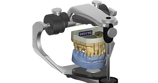 exocad Virtual Articulator (Flex Upgrade)