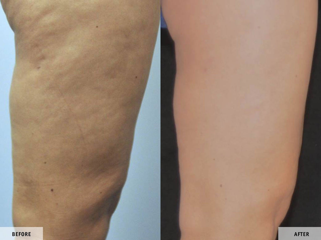 Before and After VelaShape 3 si VelaSmooth Pro
