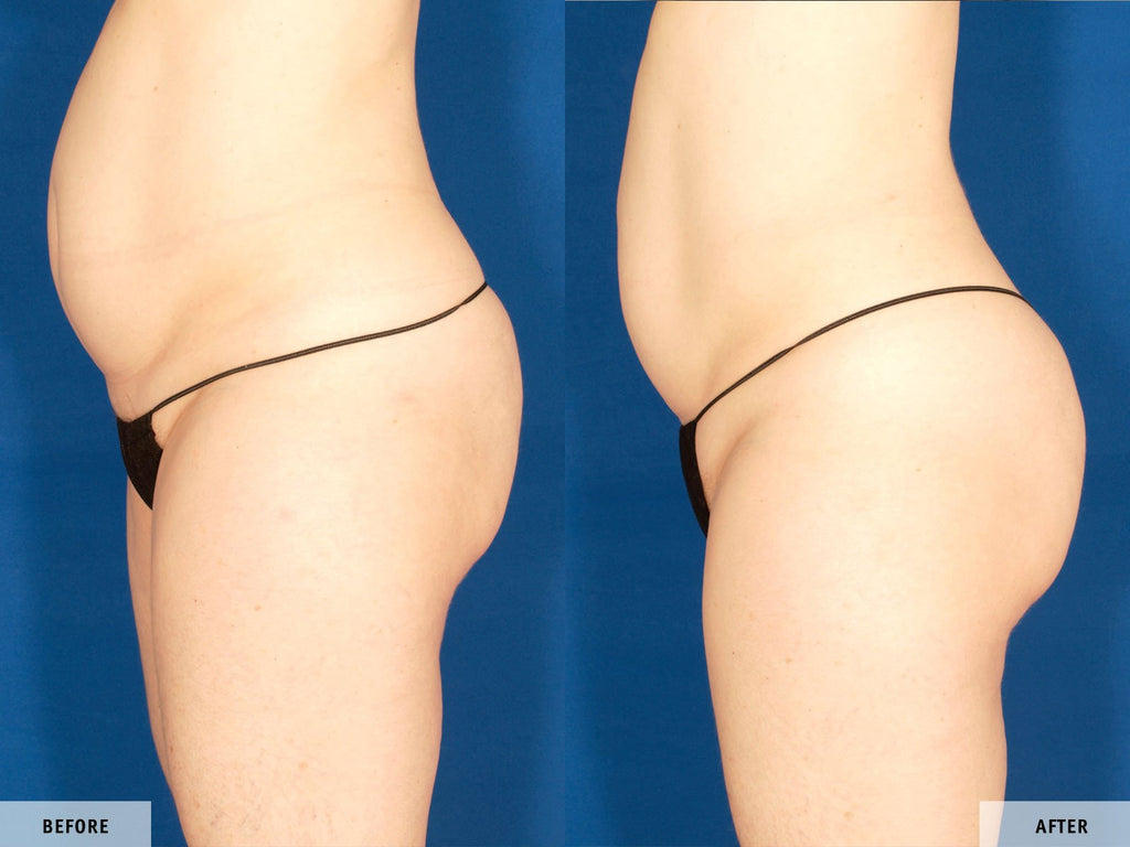 Before & After VelaShape III si VelaSmooth Pro