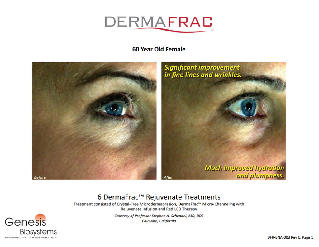 DermaFrac Before After
