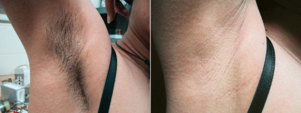 Epilare definitiva before after