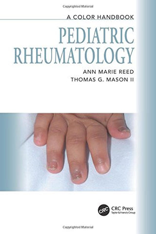 Pediatric Rheumatology: A Color Handbook (Medical Color Handbook Series)