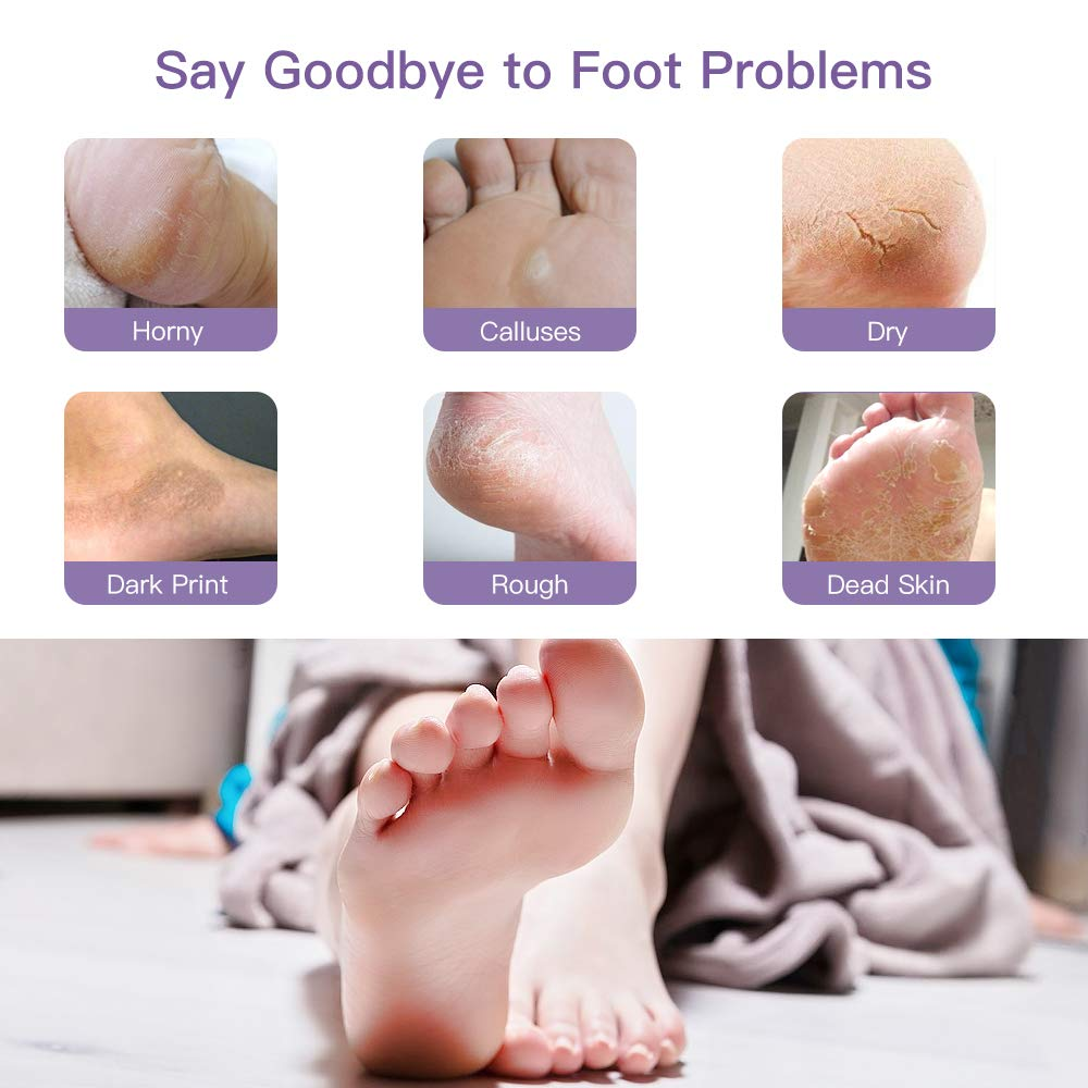 Baby Feet™ - Exfoliating Foot Mask - Rose Touch