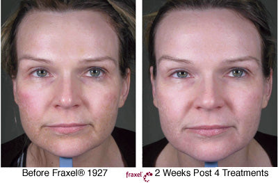 Before and After Fraxel 4 Treatments
