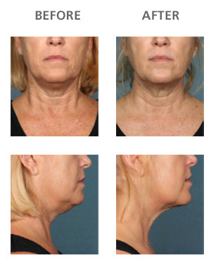Unretouched photos of clinical trial patient taken before and after treatment with KYBELLA®.
