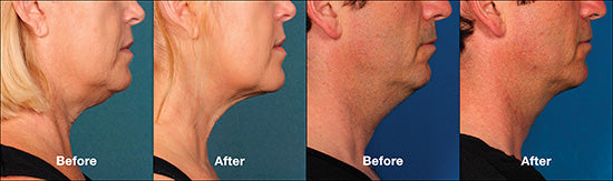 Kybella<SUP>®</SUP> before and after