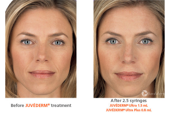 Juvéderm® Treatment