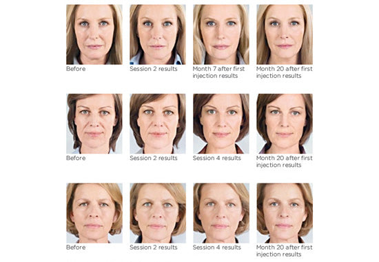 Sculptra® Before and After Treatment