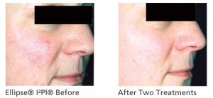 Ellipse® I²Pl® Skin Rejuvenation