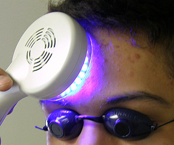 Acne Treatment LED Blue Light Therapy (dpl® Nuve Professional Series)