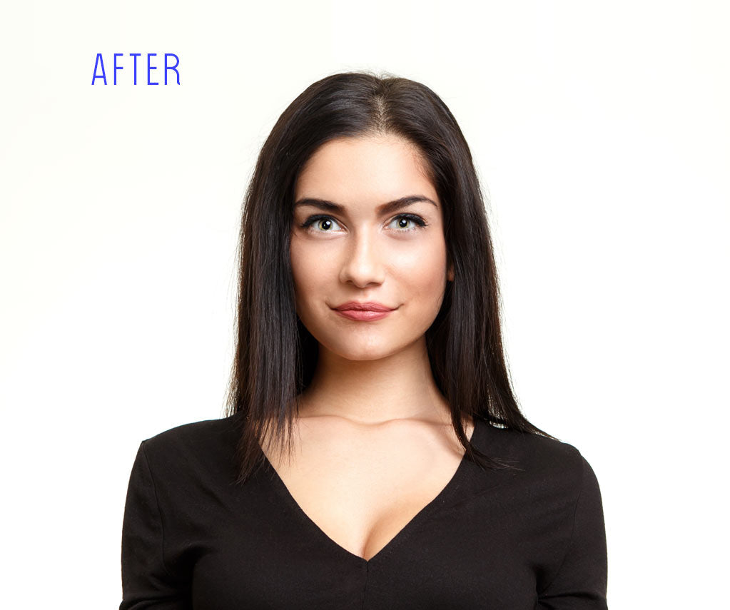 Blemish Free Option After Picture