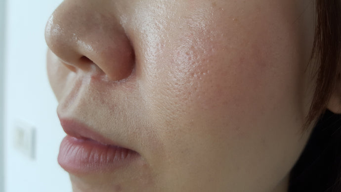 Large Pores: Why They Happen And What To Do