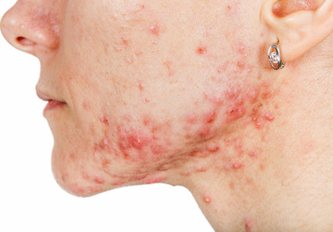 does diet affect acne