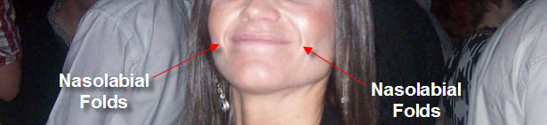 What Are Nasolabial Folds