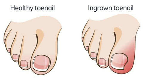 Ingrown Toenails and Hyperhidrosis