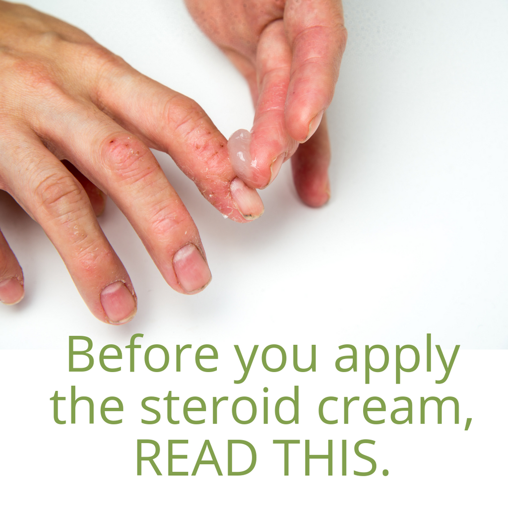 Topical steroid withdrawal is a thing! Be aware of how you're treating eczema.