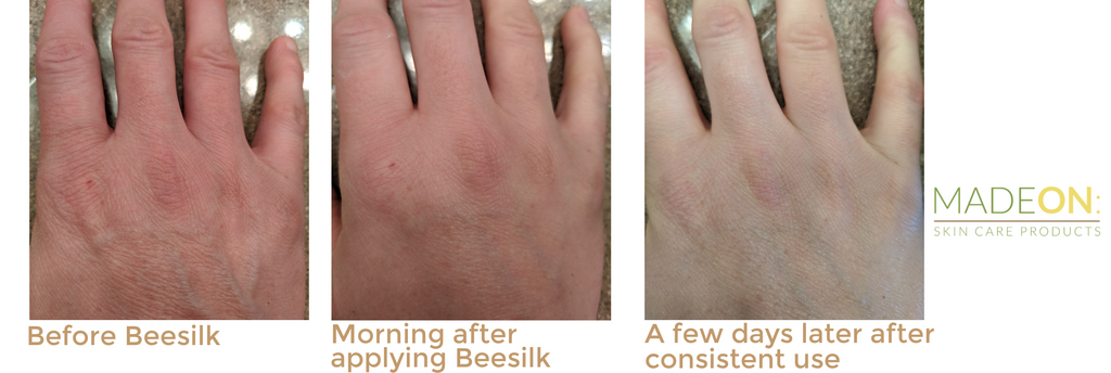Before during and after skin photos using Beesilk hard lotion bars