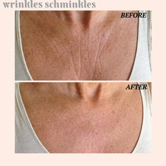 Wrinkles Schminkles Chest and Decolletage Smoothing Kit