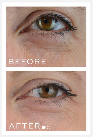 Before and After results Medik8 Crystal Retinal 6
