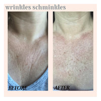 Wrinkles Schminkles Chest & Decolletage Smoothing Kit