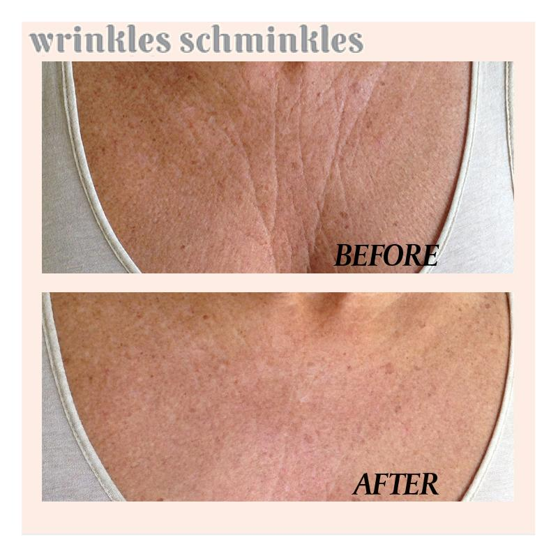 Wrinkles Schminkles Chest Wrinkle Patch